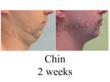 chin liposuction, double chin,